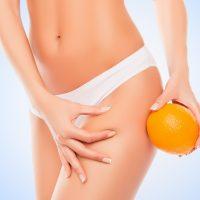 Nejste v tom samy! Až 80% všech žen se potýká s celulitidou.
